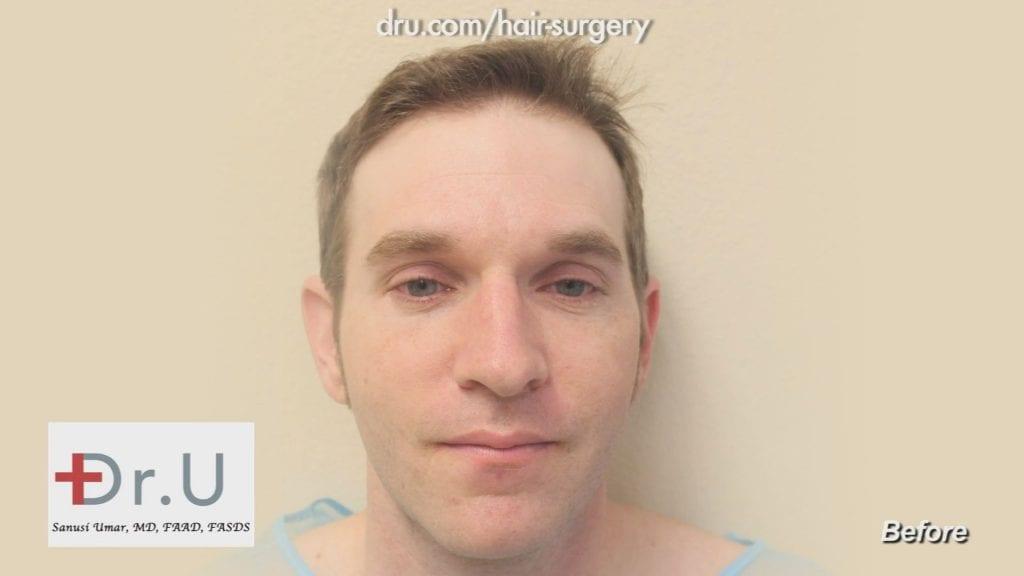 Receding hairline and crown - Before Dr.UGraft Restoration