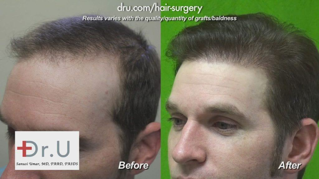 After a previous unsuccessful surgery, Dr. U created a Reworked Hairline and Temples with 1800 Dr UGrafts FUE for natural-looking results.