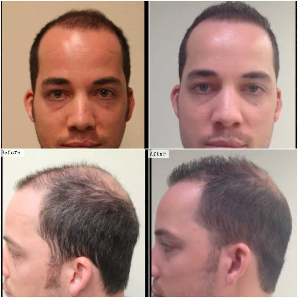 DrUGraft hair transplant using 1600 head grafts - before and after