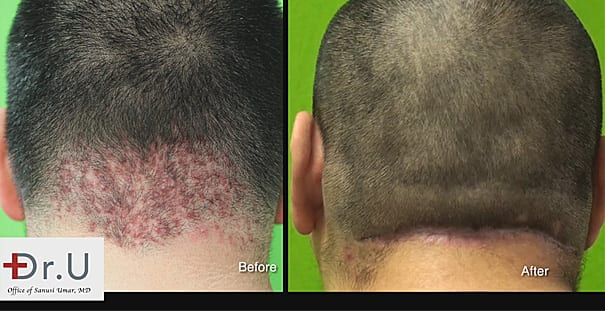 How to get rid of a bump on the back of my neck and head? This Dr Umar patient found the answer through AKN surgical removal.*
