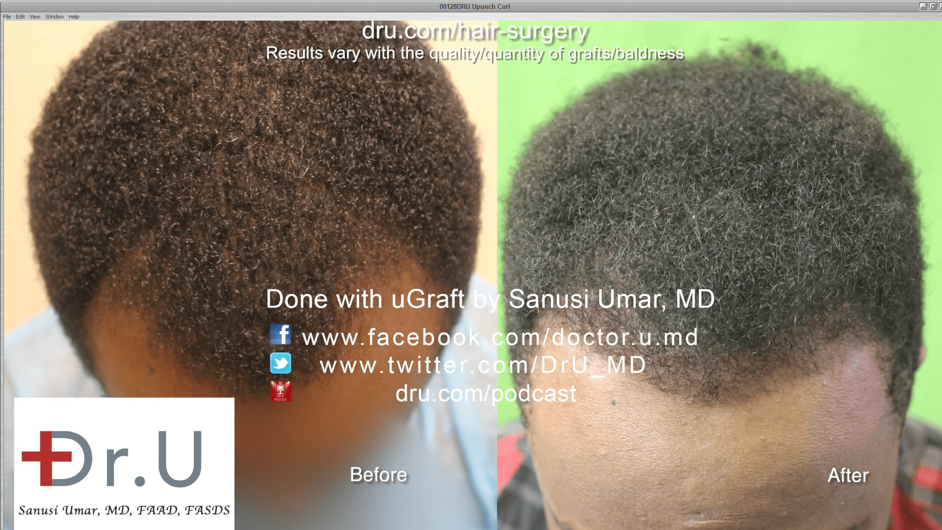 Black male hair transplant before and after.