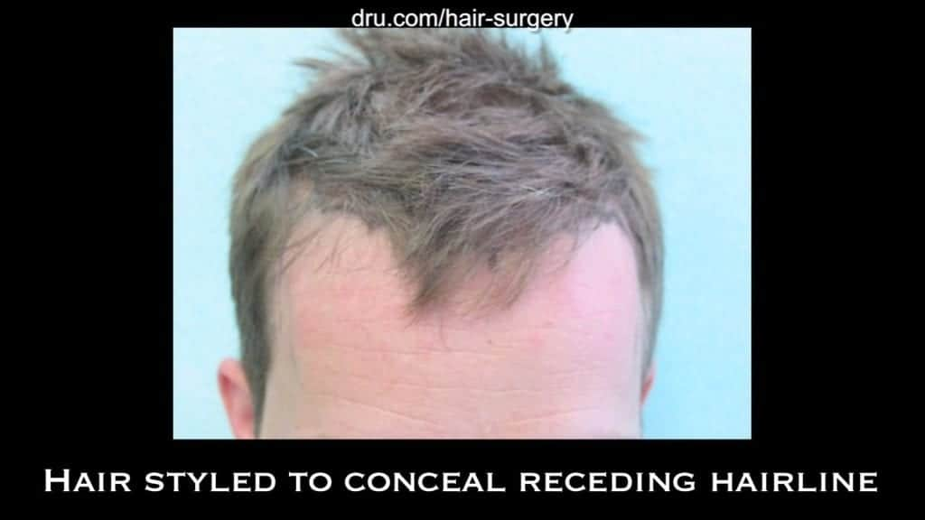 Hair loss forced this patient to keep his hair styled forward in order to camouflage his bald spot. This is an example of his hairstyle prior to receding hairline hair transplant with the Dr.UGraft.