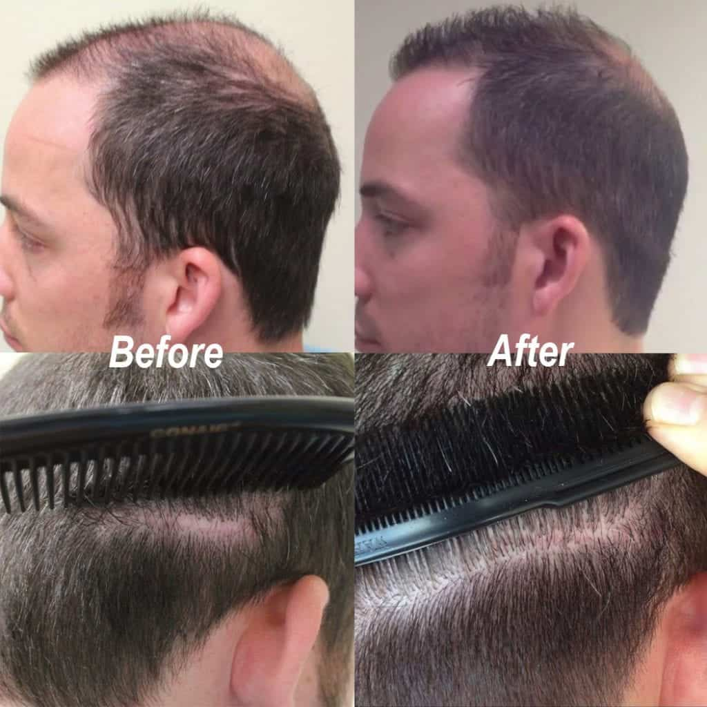 Dr UGraft FUE Hair Transplant Using 1600 Head Grafts For Strip Scar Restoration - Before and After