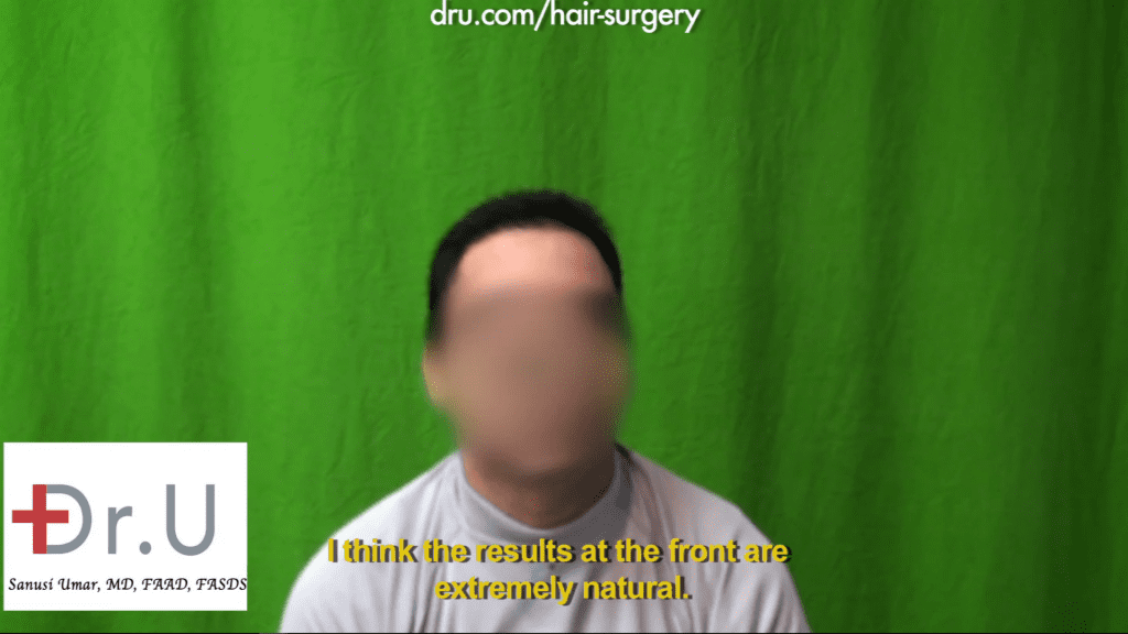 Hairline hair transplant: The patient received excellent results from the 1000 Dr.UGrafts repair of hairline after previous strip surgery.