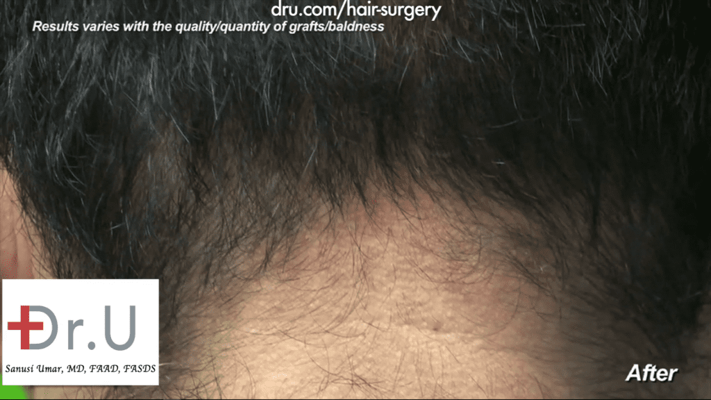 Hairline transplant: The nape of the patient has healed properly while growing back and showing no visible sign of the 1000 Dr.UGraft repair of hairline after previous strip surgery performed by Dr. Umar