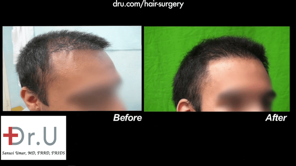 A side angle of this patients new and more natural looking hairline and temple region thanks to Dr. U.