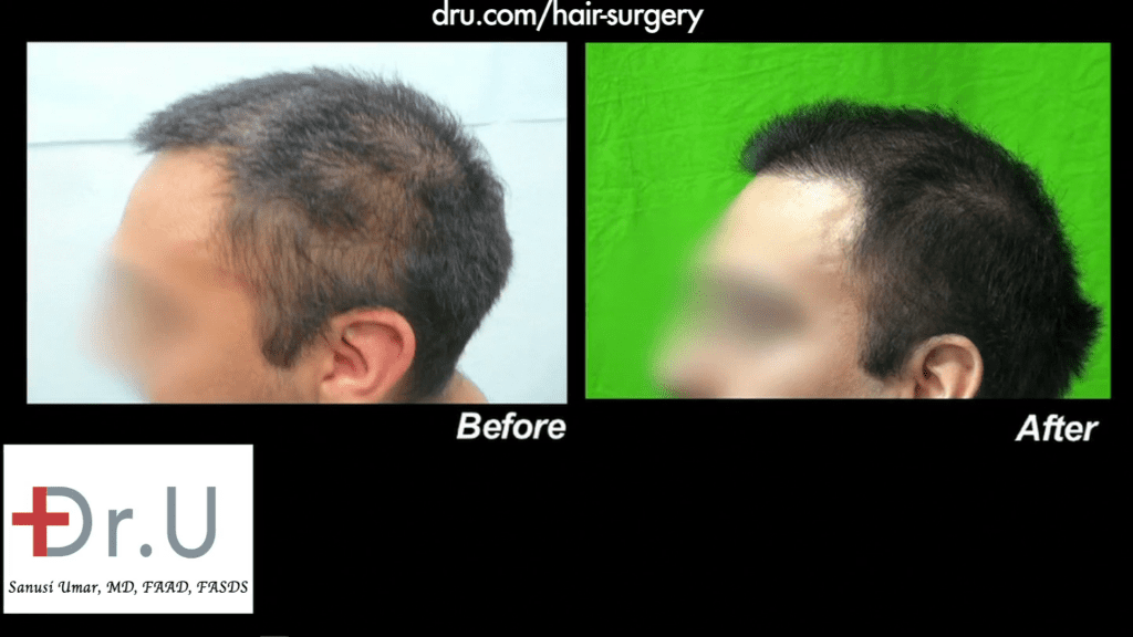 Hairline Repair Using Nape hair - Frontal Hair Transplant Before and After Photo