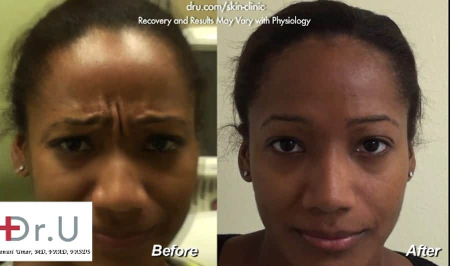 Dysport Before and After - Treatment of Frown Lines