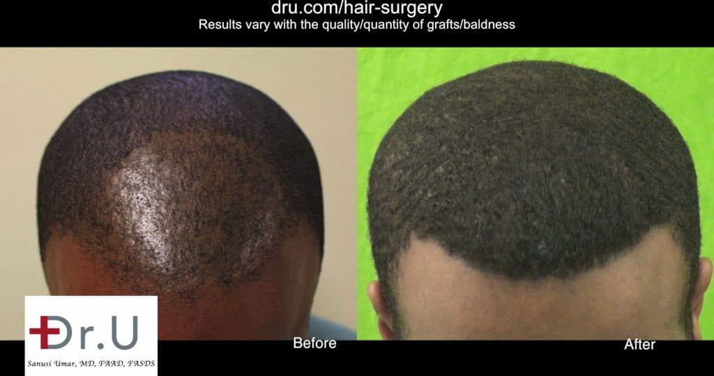 black male hair transplant cost: You save in cost by having it done properly the first time. Results after the Dr.UPunch Curl tool repaired poor FUE outcome from another clinic transplant.