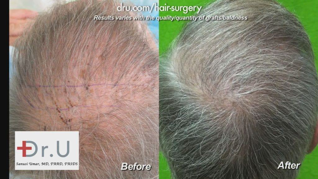 A drastic change can be seen by these before and after photos of a hair transplant patient of Dr. Umar.