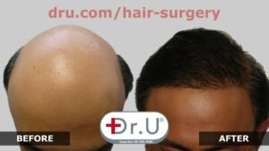 Patients with excessive hair loss and severe balding who sought help from Dr. Umar have successfully seen growth with Dr.UGraft Advanced FUE method.*