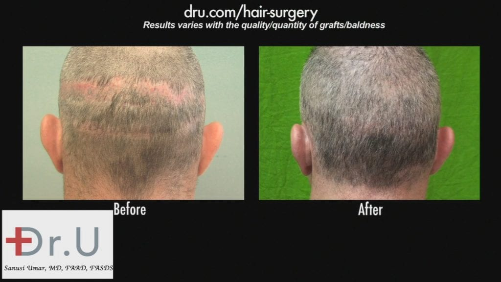 Botched Hair Transplant Pictures: A visible strip scar (left) and repair of the surgery using Dr.UGraft (right).*