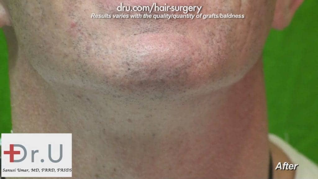 Beard donor area after FUE wound healing