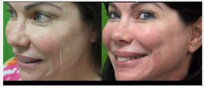 Belotero Dermal Filler Before and After