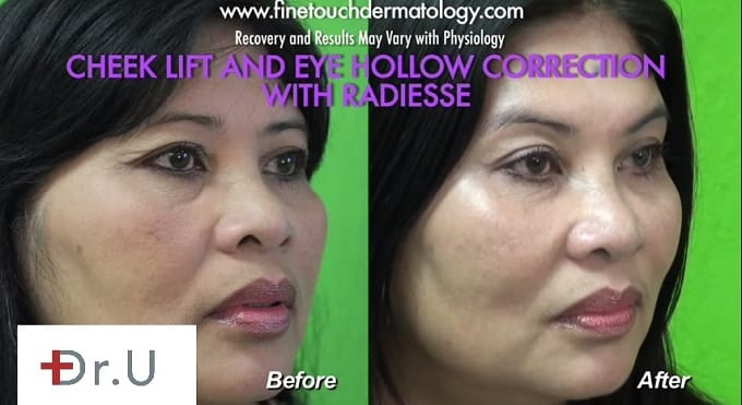 Non surgical cheek augmentation with fillers lift restores midface volume