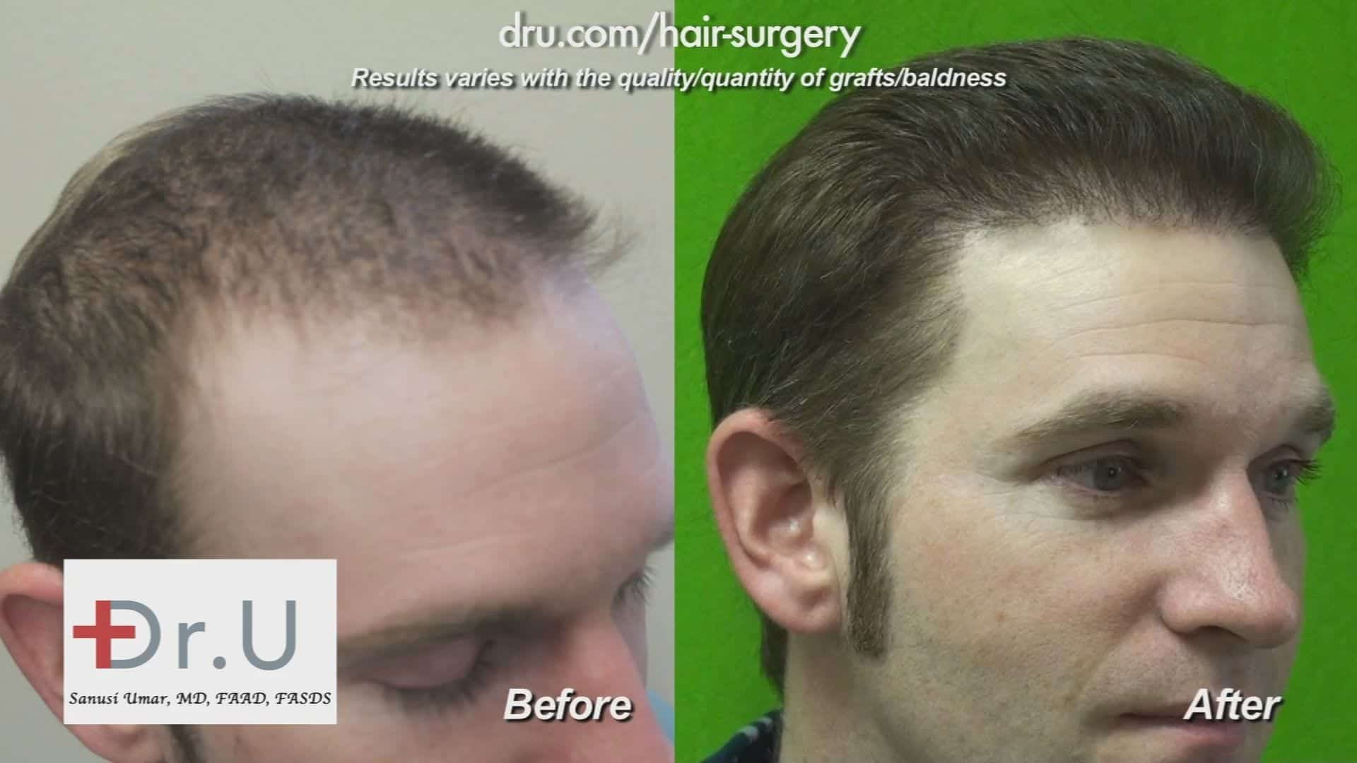 This patient benefited immensely from his FUT (Follicular Unit Transfer) surgery, which is also known as Follicular Unit Extraction, although no one would have guessed that he had a hair transplant *