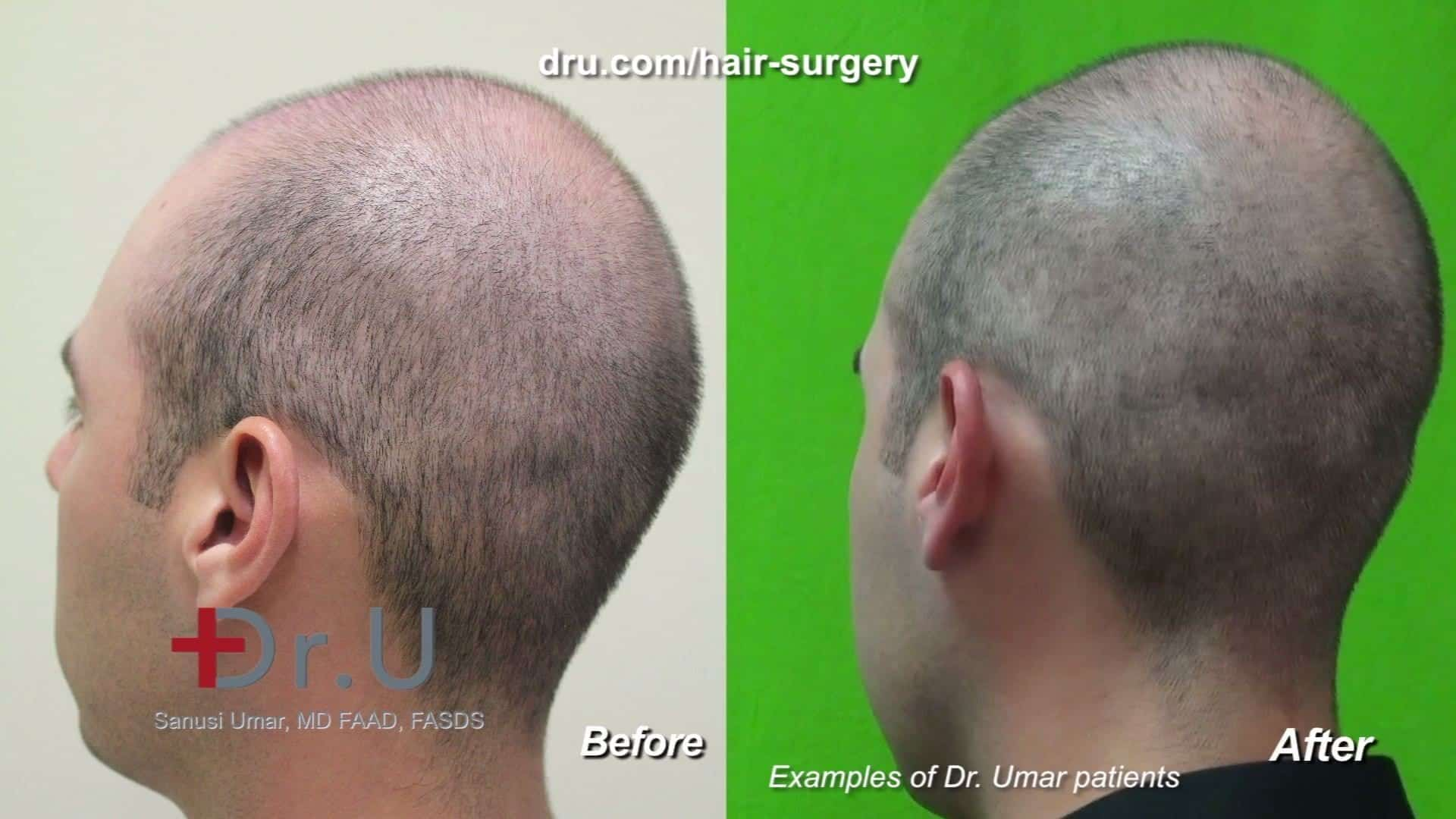 pimples after a hair transplant - Q&A Discussion