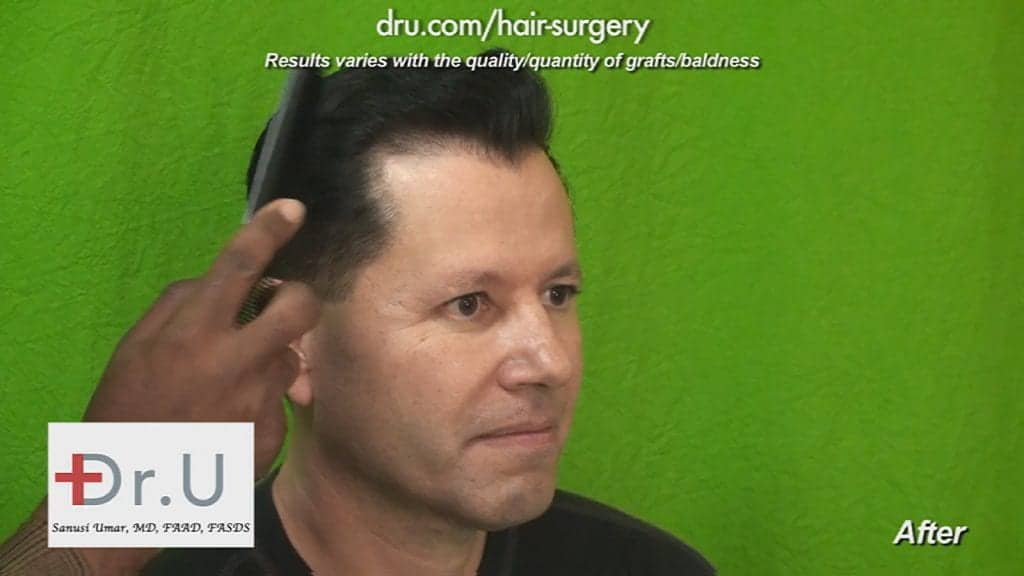 Result photo of a patient who had his hairline reshaped and lowered by Dr. Umar and his DrUGraft technology in Los Angeles.