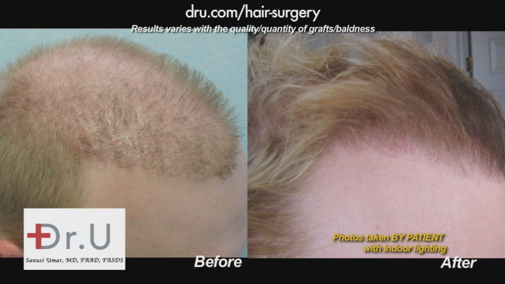 Before and after hairline photo of a patient who received a hair transplant from Dr. U in Los Angeles.
