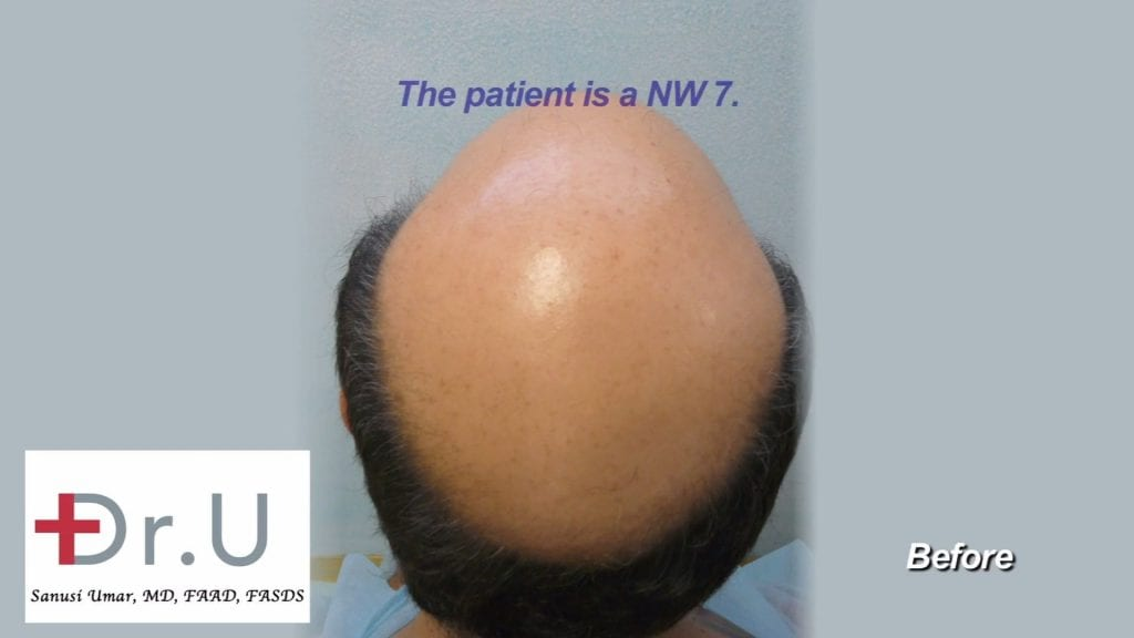 Impact of graft count of price of hair surgery :This Dr U patient was a category 7 on the Norwood Scale. He needed at least 12000 grafts for a credible hair restoration