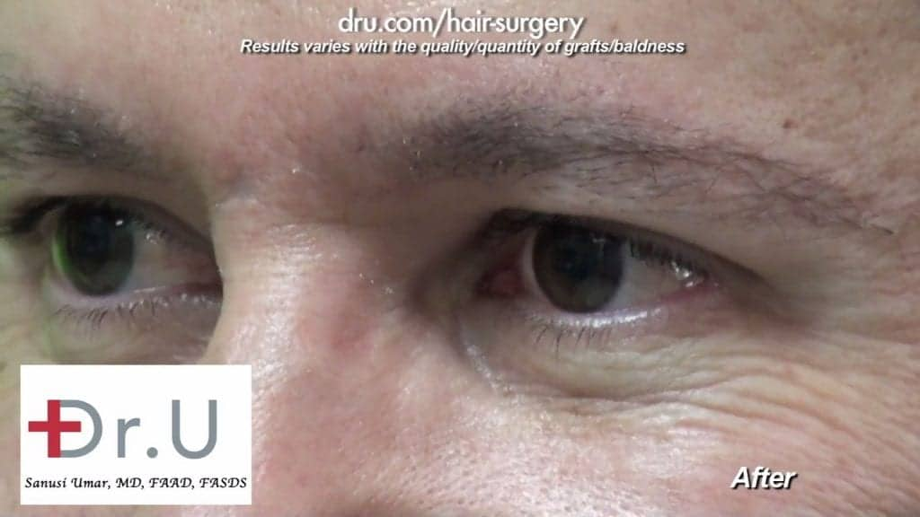 Male eyebrow restoration after Dr.Graft surgery. Eyebrow hair transplant cost depends on the number of grafts needed
