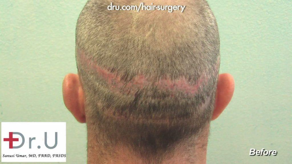 Before Dr. U performed a hair transplantation to cover the severe scarring from a previous strip FUSS surgery.