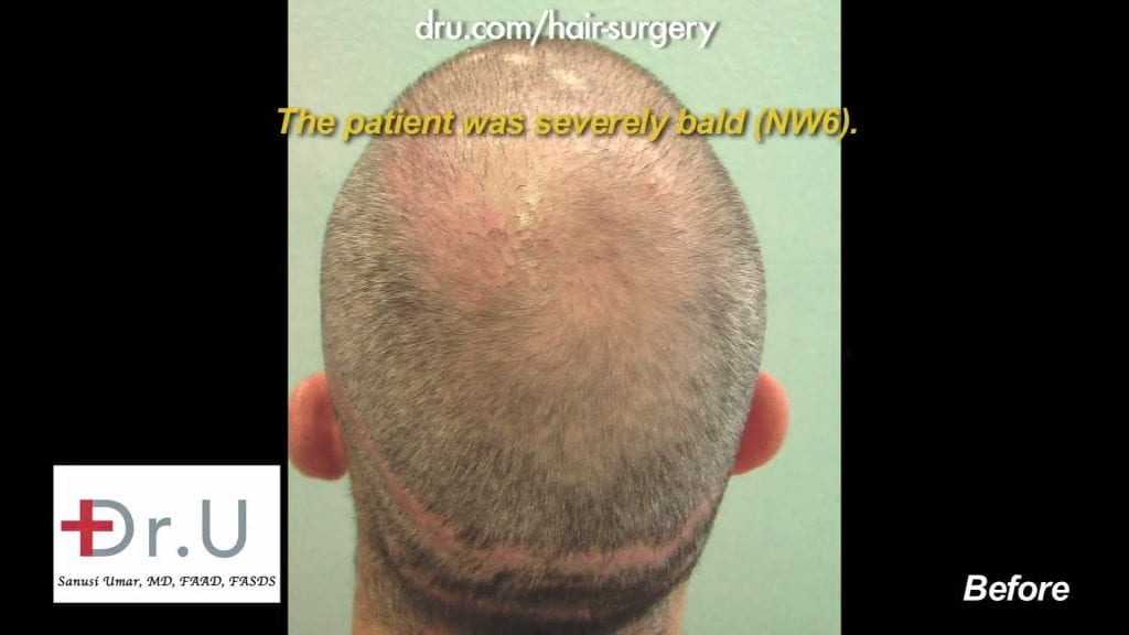 This patient was a 6 on the NW scale, he came to Dr. Umar to fix this.