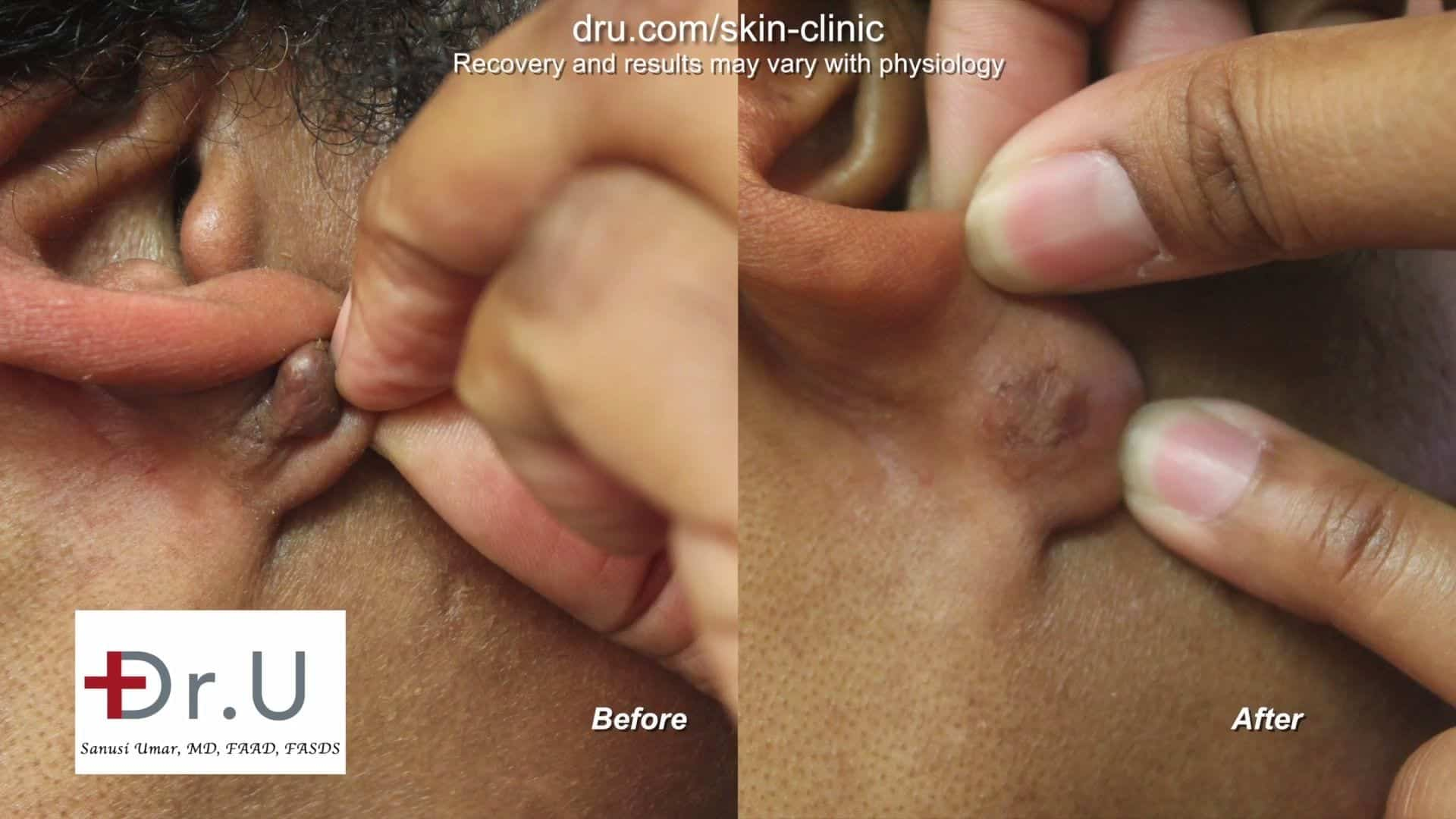 After receiving earlobe keloid removal treatment, this Los Angeles patient is left with a keloid free earlobe a year after the surgery.