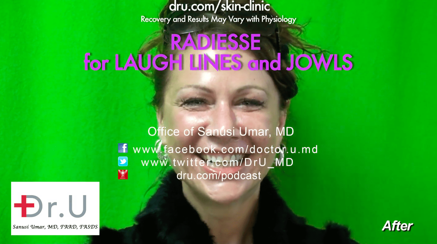 Radiesse treatment for laugh lines was a success.