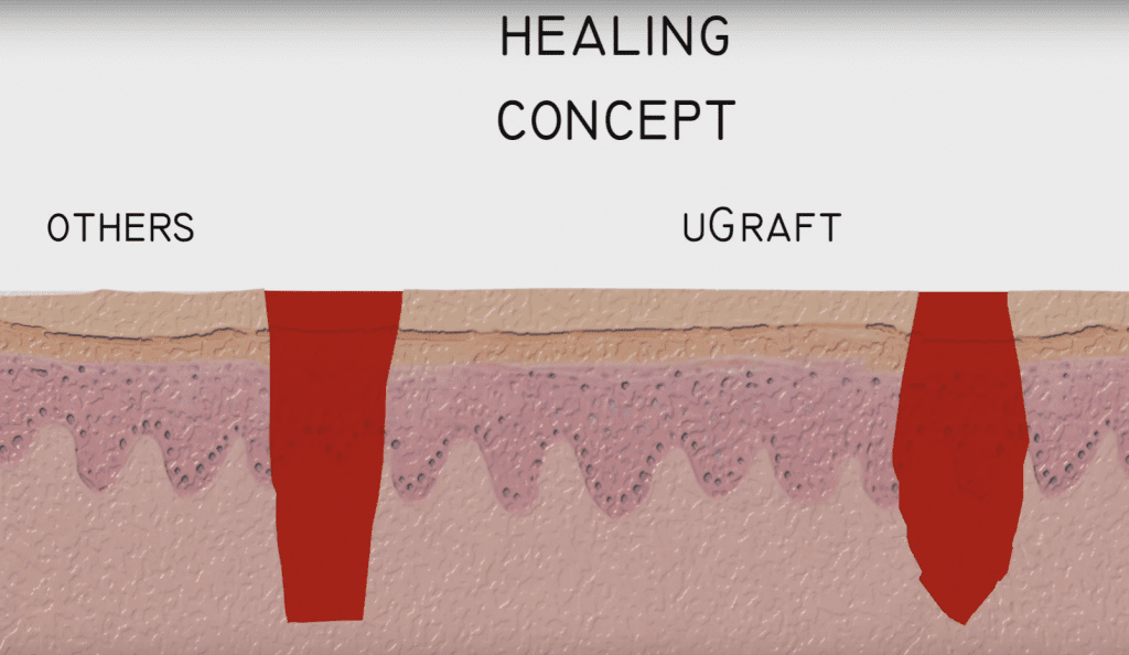 FUE wound healing: Generally, wounds from the DrUGraft heal in about a month