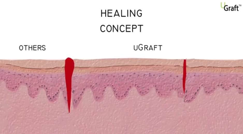 FUE transplant recovery: The DrUGraft leaves a smaller incision, and wounds heal in a month or less.