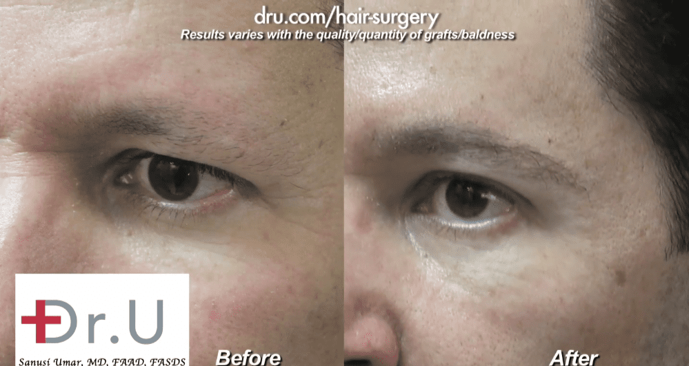 Dr.UGraft™'s ease of use when it comes to the utilization of body hair makes natural-looking eyebrow transplants a non-issue.*