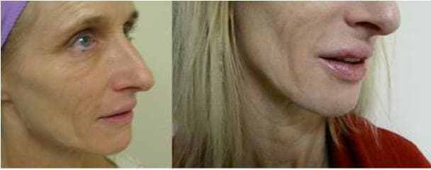 Natural lip enhancement Juvederm before and after