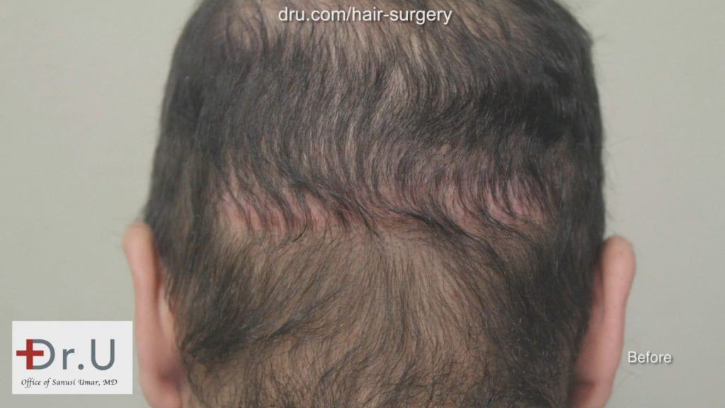 Before Dr U Repair, patient had huge scars from past surgery and a depleted donor area