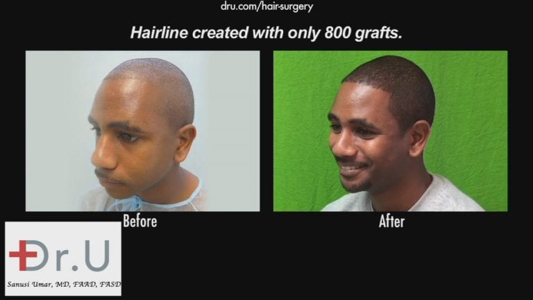 The results the Dr.UGrafti™ system is able to achieve speak for themselves.*