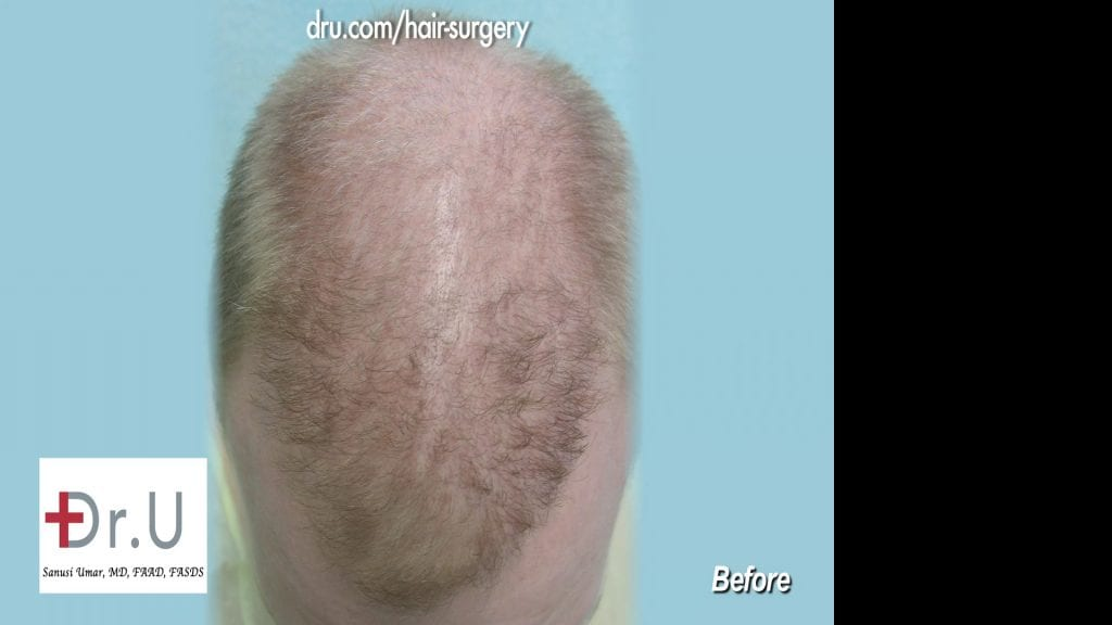 After hair transplant at another clinic, the patient was left with an asymmetric hairline and frontal scalp