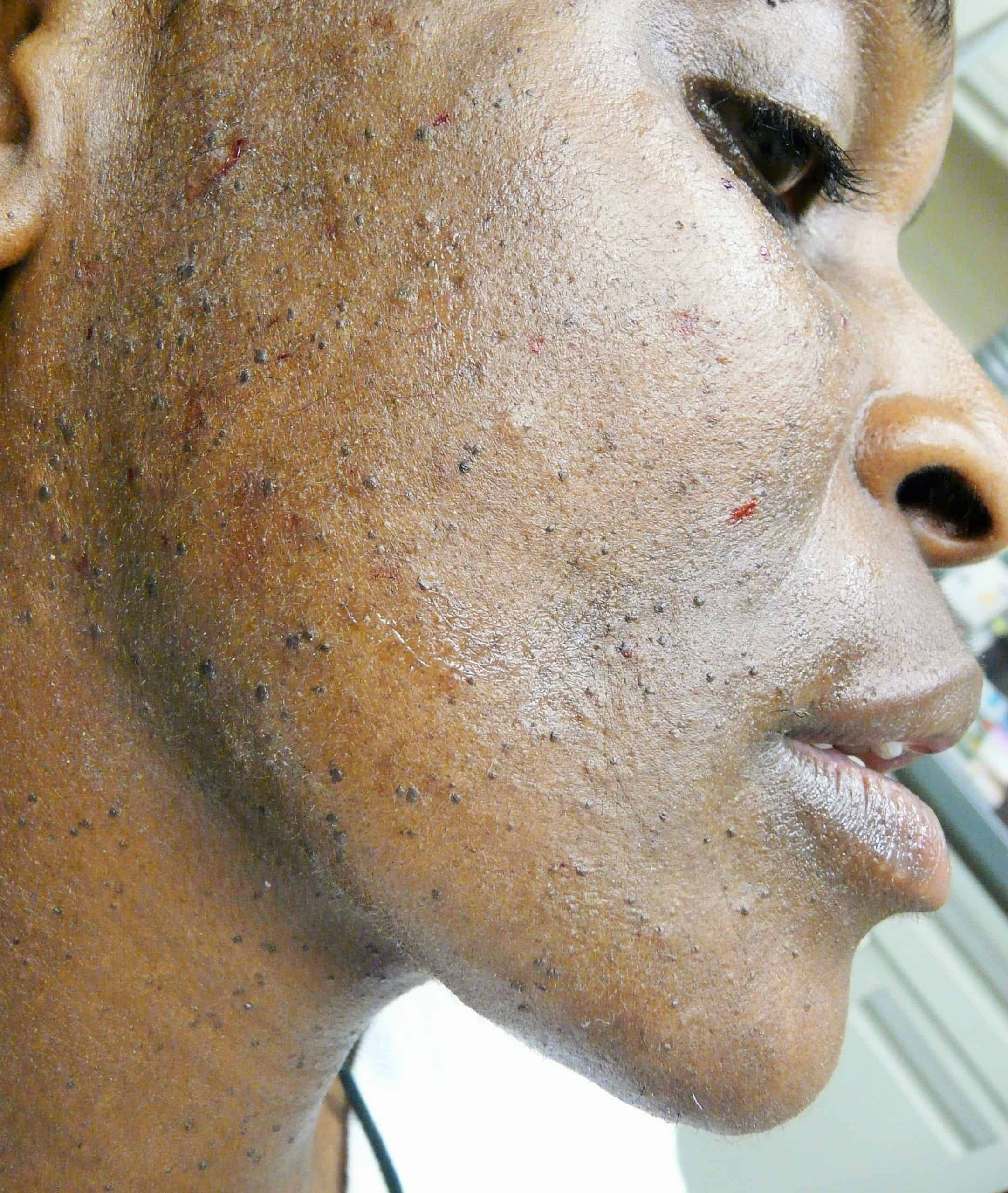 Photo showing lack of DPN skin prevention