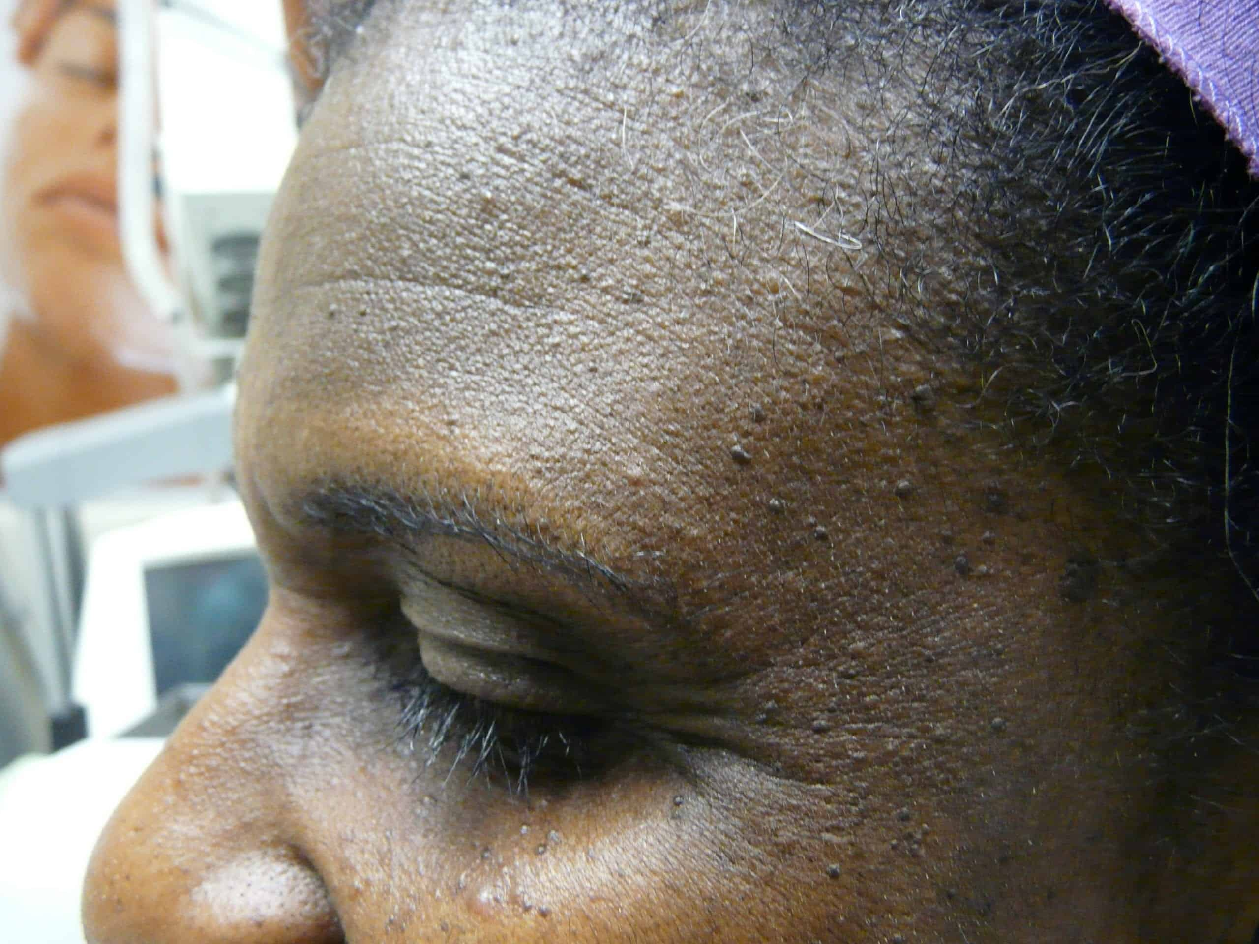An example of DPN skin causes