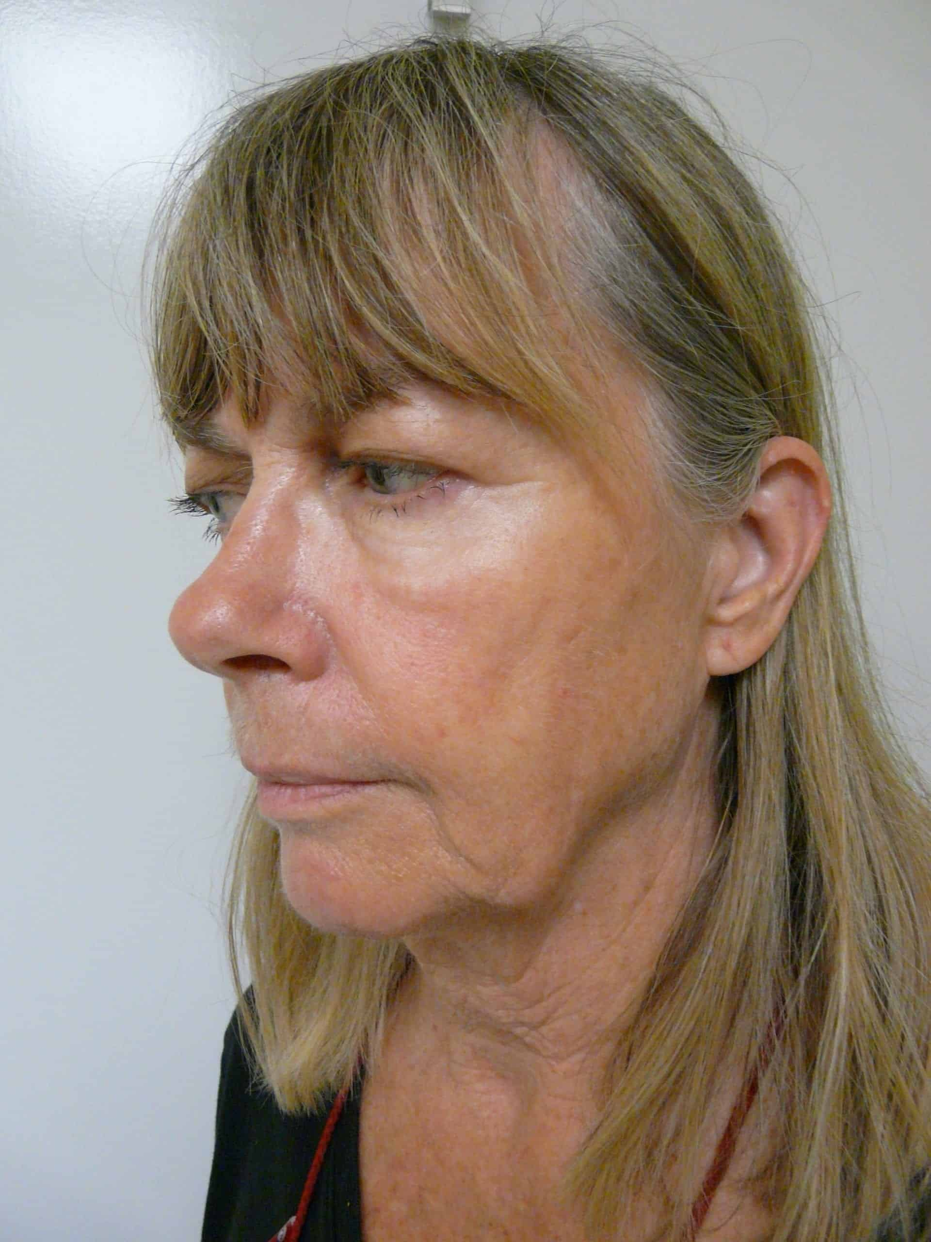 How do I get rid of my jowls?