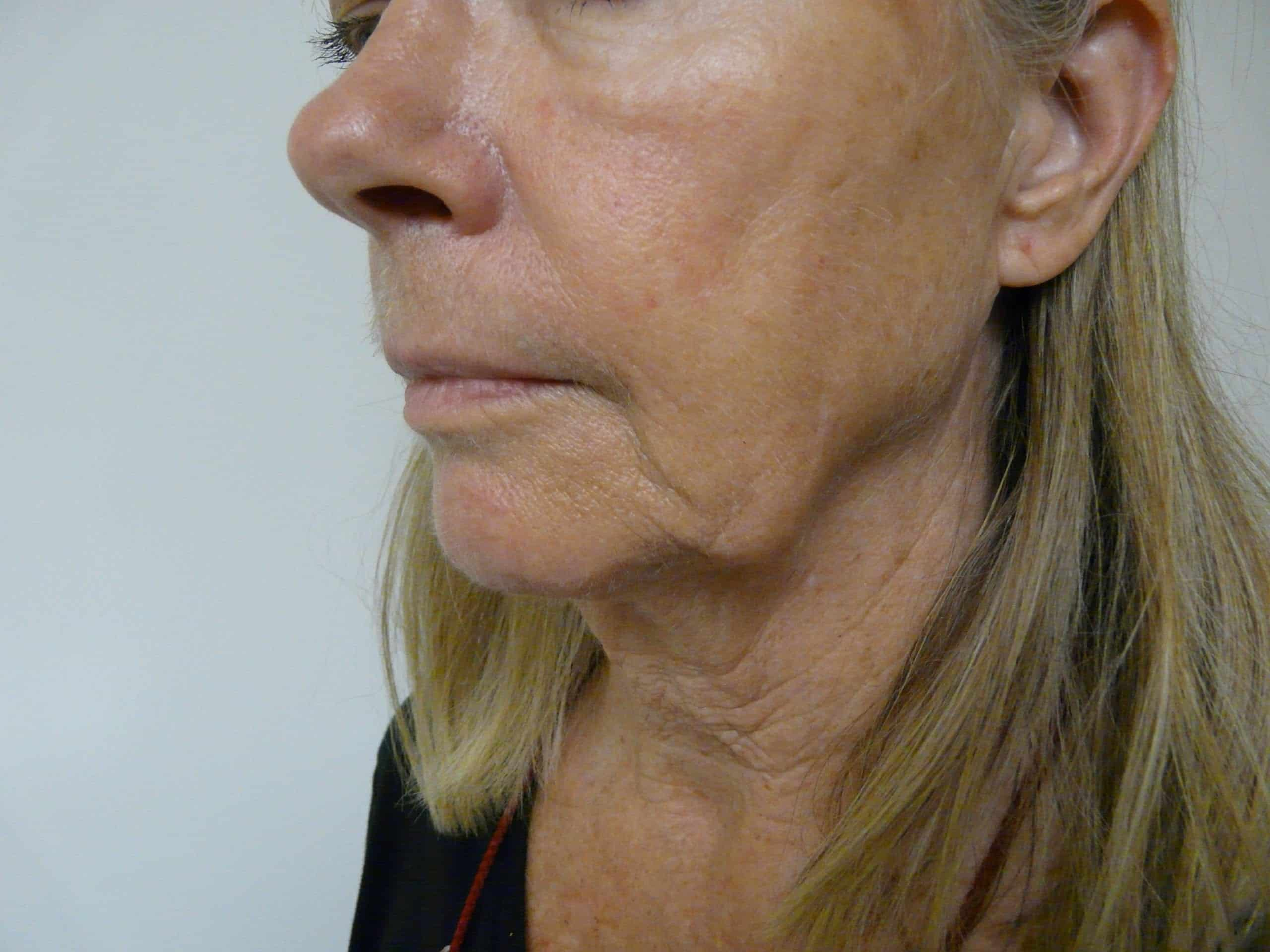 Non surgical jaw lift - before Radiesse
