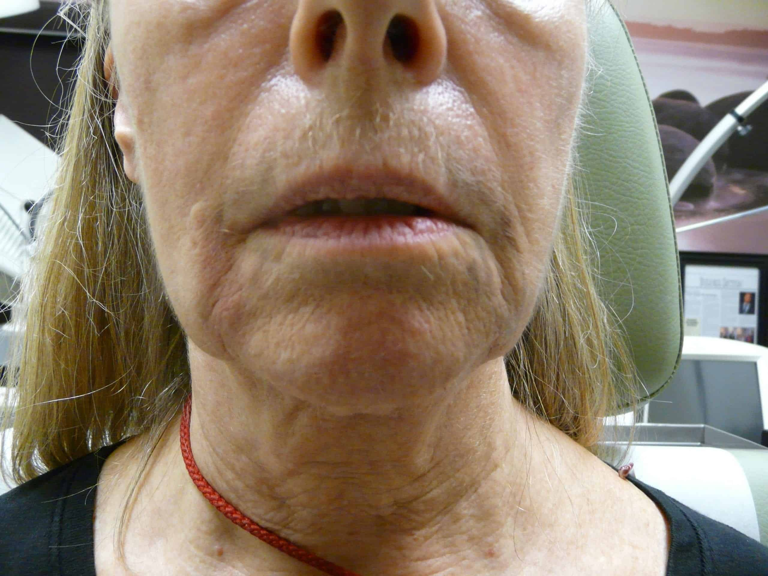 Radiesse for non surgical jaw lift.