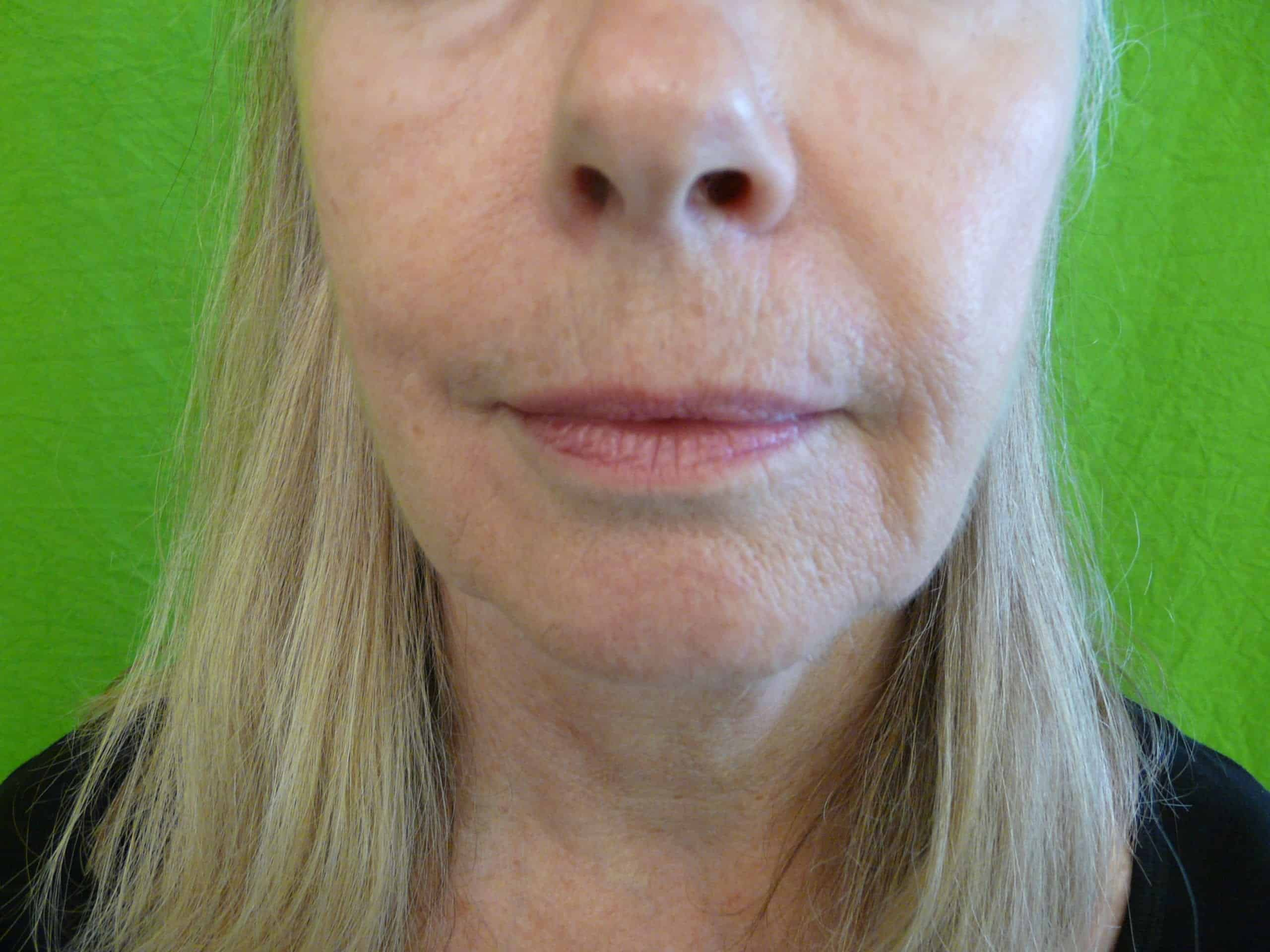 Best Treatment for a Sagging Jawline: Remove jowls with dermal fillers.