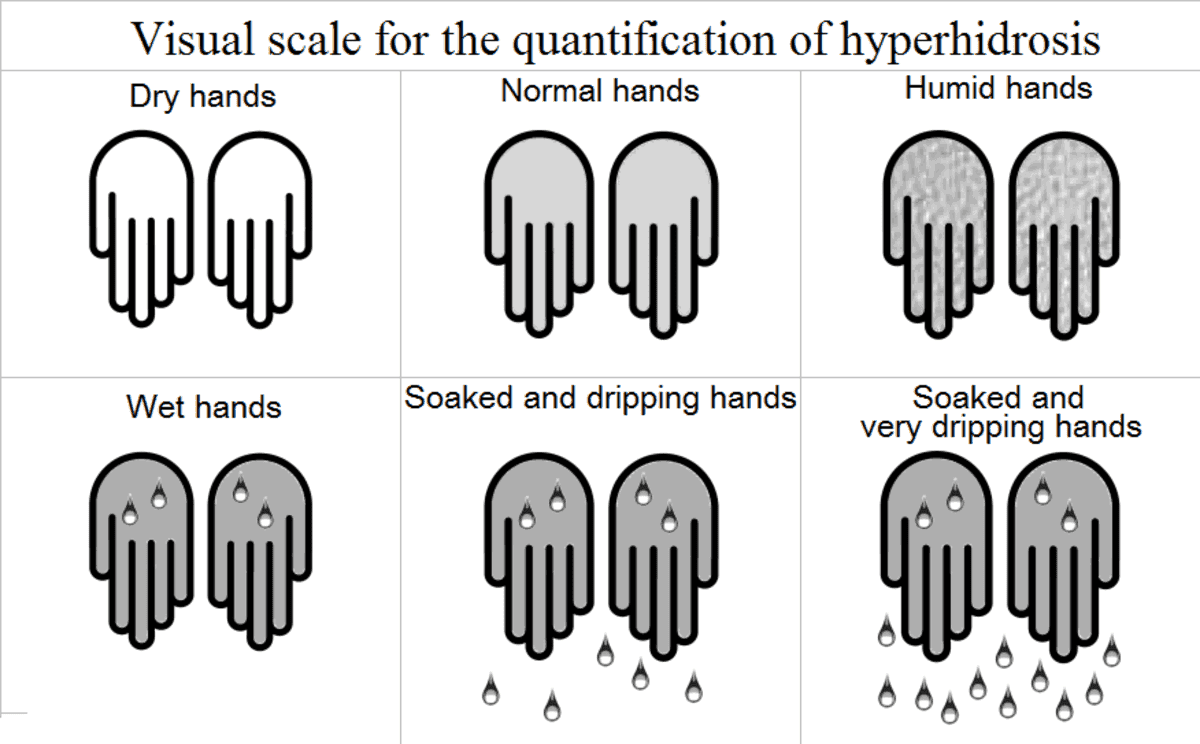 A scale showing the severity levels of Hyperhidrosis. Find Hyperhidrosis treatment at Dr. U Skin Clinic.
