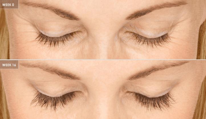 Latisse eyelash treatment comparison photos.
