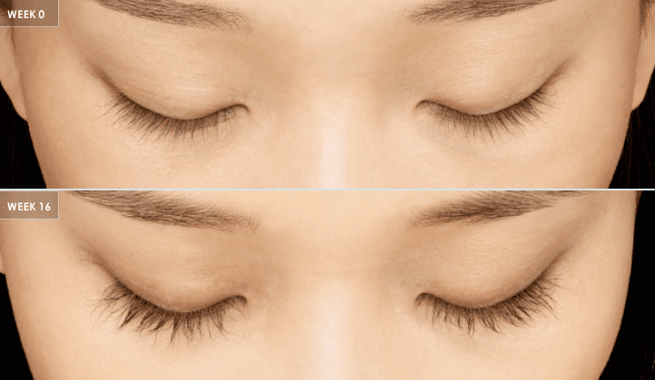 16 weeks of Latisse eyelash treatment
