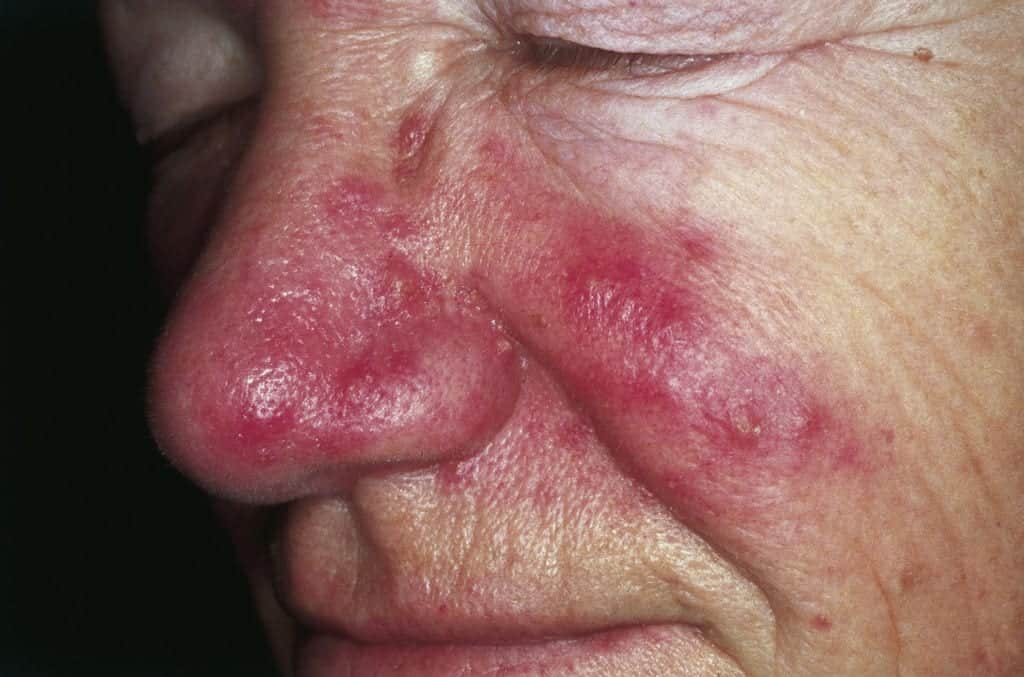 Rosacea is a common skin condition that appears in the form of redness and bumps on the skin. Continue reading this article for more rosacea information and red face treatment options with Dr. U.
