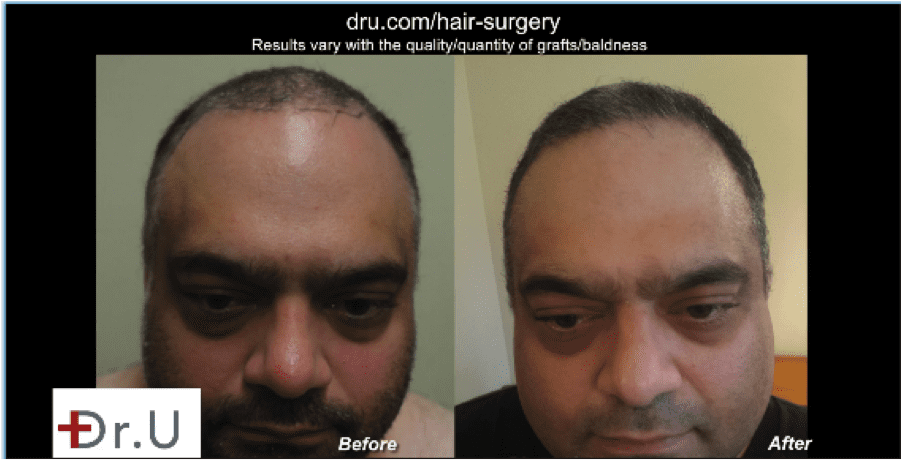 This patient is very pleased with his Natural hair transplant results using DrUGraft.*