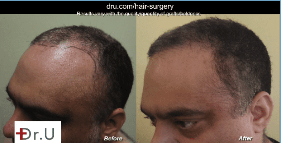 Are you interested in a body hair transplant for canadians? Dr. U in Manhattan Beach is here to help.*