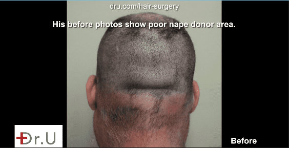 After a shave test this patient proved to have a poor nape donor area.