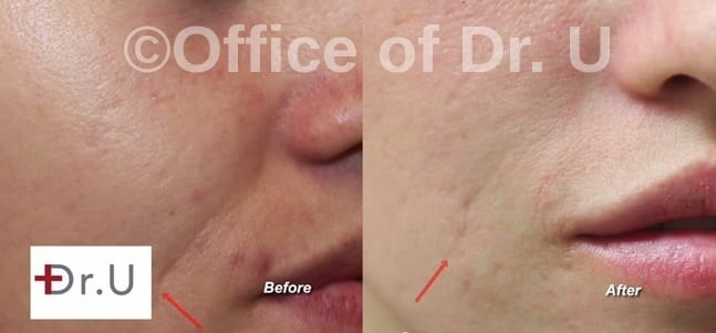 Laugh Line Reduction Before and after photos in a Manhattan Beach Los Angeles Patient of Dr U